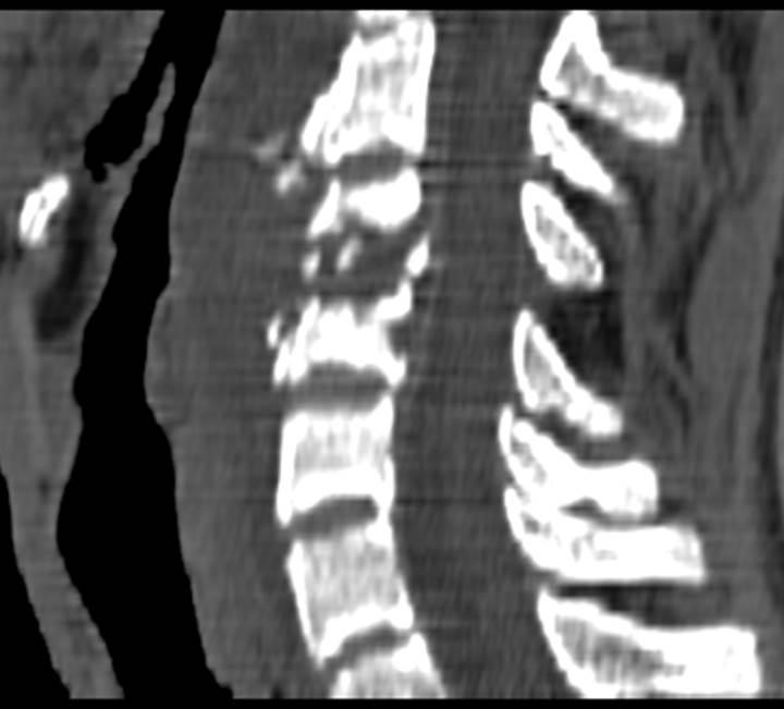 Острый остеомиелит С4-5 КТ (скобелев)0012