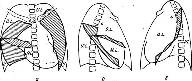 Рентгенодиагностика плевритов