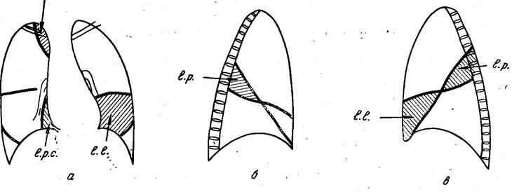 Схема добавочных междолевых