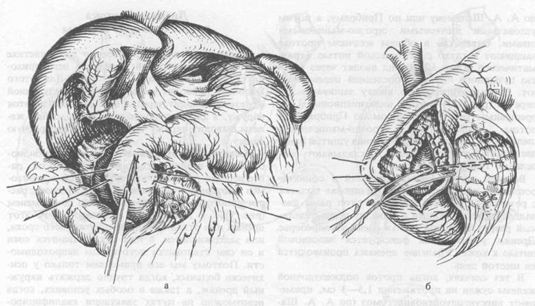 Сфинктеротомия