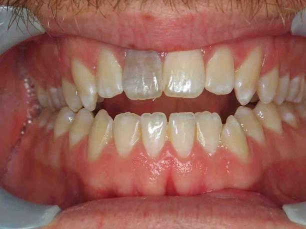 От чего болит мёртвый зуб