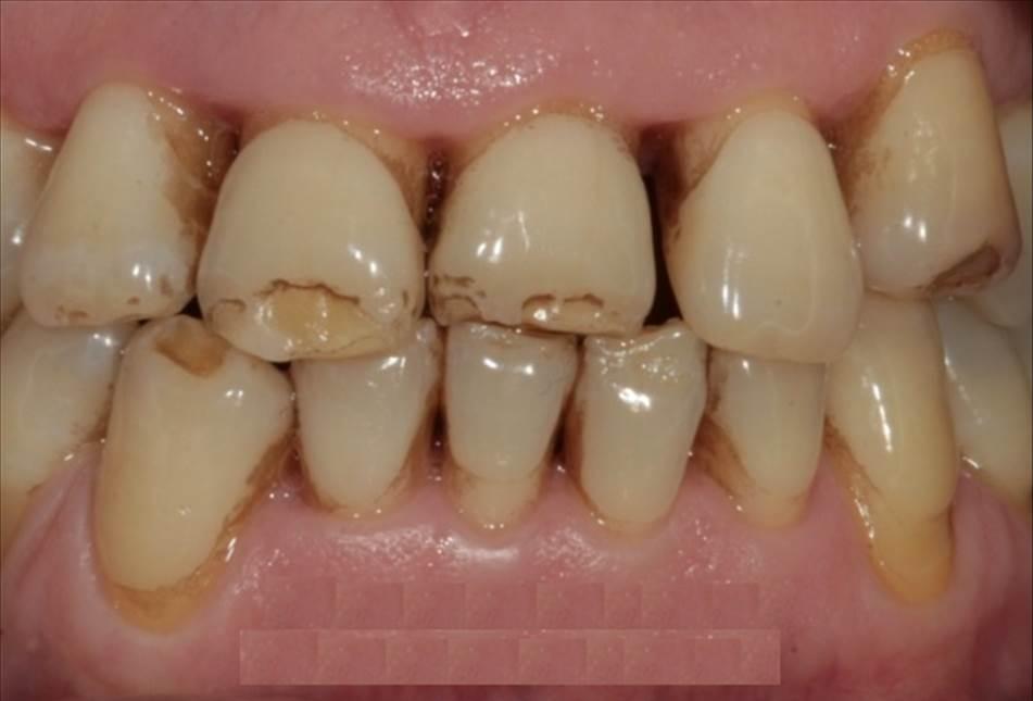 гипоплазия зубов картинки